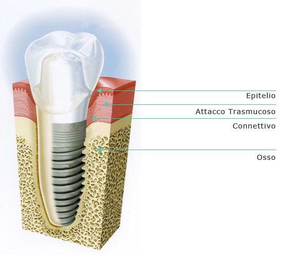 operazione denti