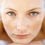 Come eliminare le macchie dal viso. I rimedi più efficaci