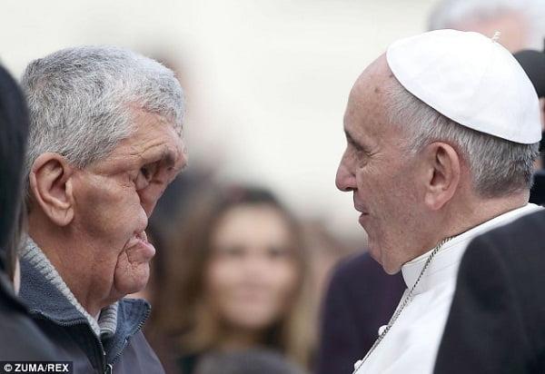 Papa Francesco abbraccia l'uomo dal viso sfigurato FOTO