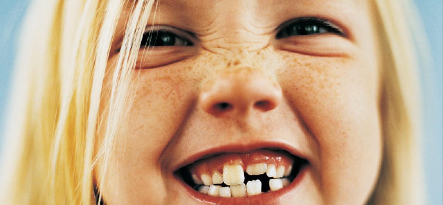 Caduta del primo dentino