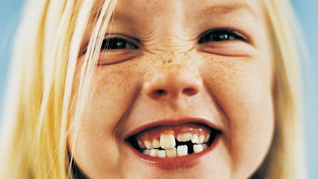 caduta denti