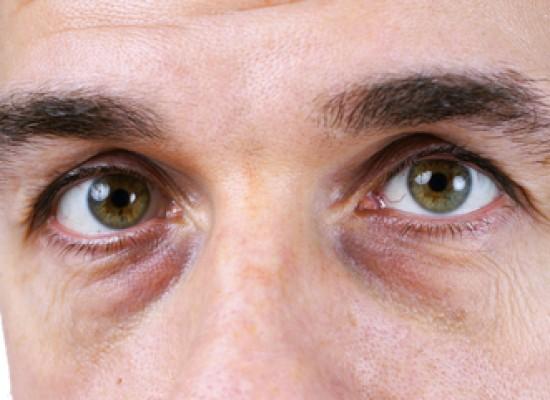 Macchie nere occhi o cerchi scuri sotto gli occhi