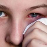 Rimedi omeopatici per la salute degli occhi