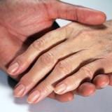 Macchie marroni sulle mani. Che cosa sono e quali rimedi usare