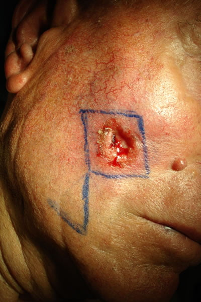 carcinoma basocellulare ulcerato