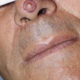 Carcinomi spinocellulari: sintomi e terapia