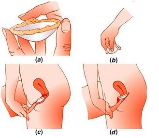 Cappuccio cervicale contraccettivo