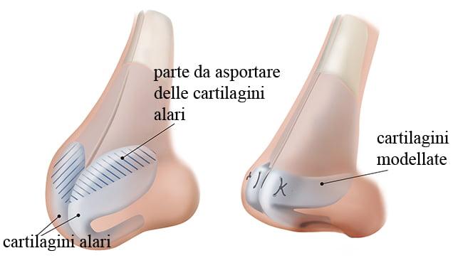 rinoplastica-punta-naso