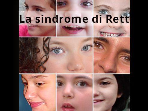 Risultati immagini per sindrome di Rett