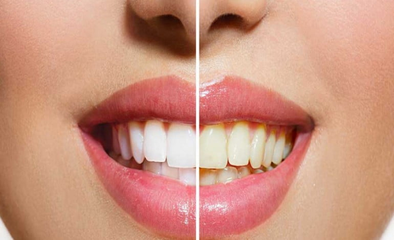 denti carta stagnola