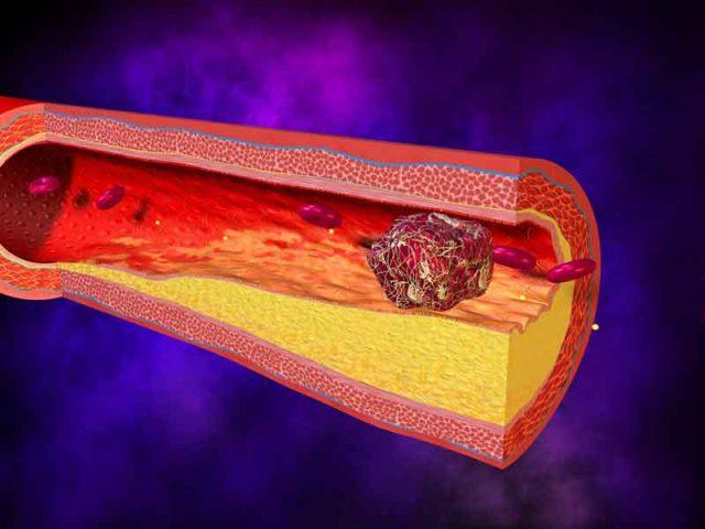 Trombosi, patologia con grumi nei vasi sanguigni