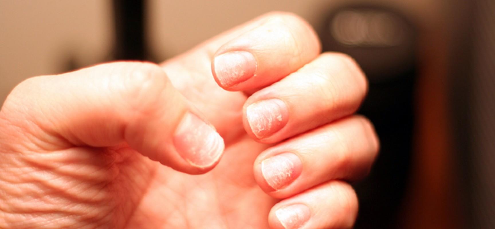 Analisi per definizione di un fungo di unghie