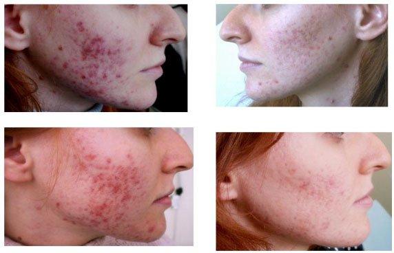 Rimedi efficaci da rimedi di gente di acne