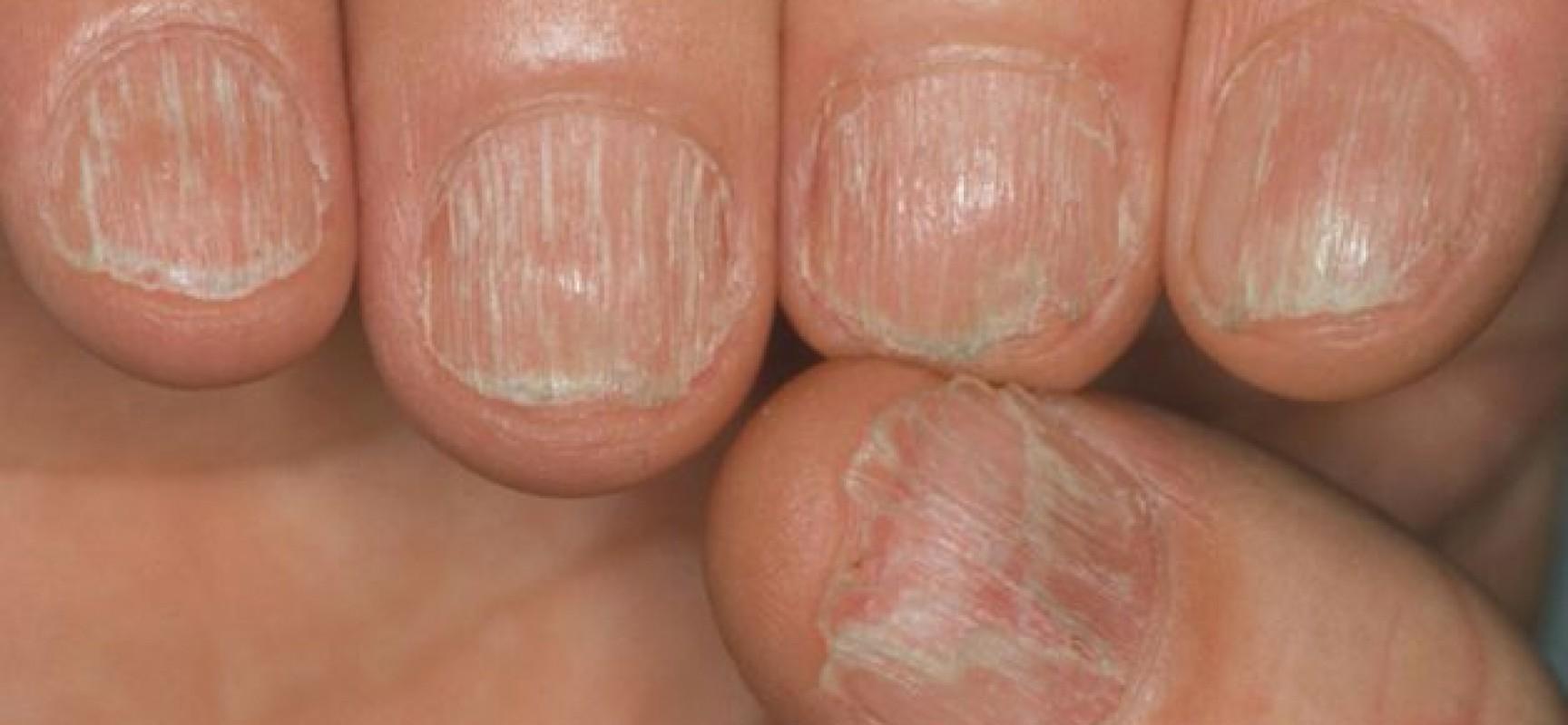 Eczema su mani della ragione e il trattamento al bambino