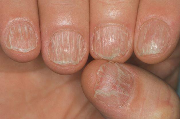 Come curare leczema di dermatite seboreyny