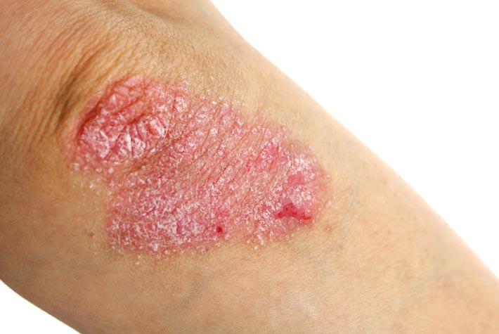Dermatite di atopic sotto occhi a bambini